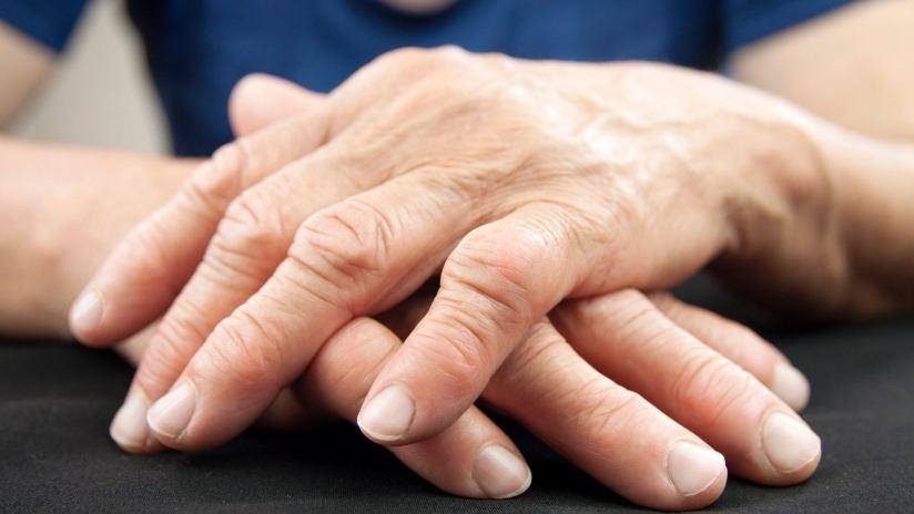 Artrite e artrosi: conosciamo la differenza?