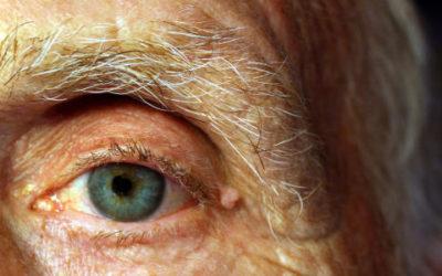 Cataratta, glaucoma e altre malattie oculari nella terza età icare iCare – Servizi a domicilio per anziani e disabili occhio 400x250