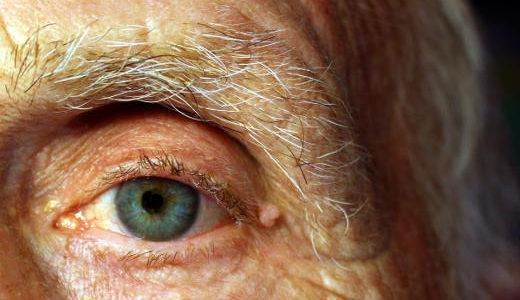 Cataratta, glaucoma e altre malattie oculari nella terza età