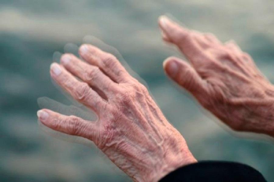 Morbo di Parkinson: dieci segnali da non sottovalutare