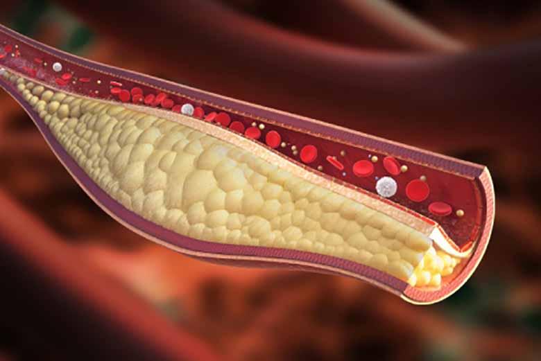 Colesterolo: gli alimenti che aiutano a prevenirlo