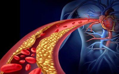 Aterosclerosi, l'importanza della prevenzione icare iCare – Servizi a domicilio per anziani e disabili aterosclerosi 400x250