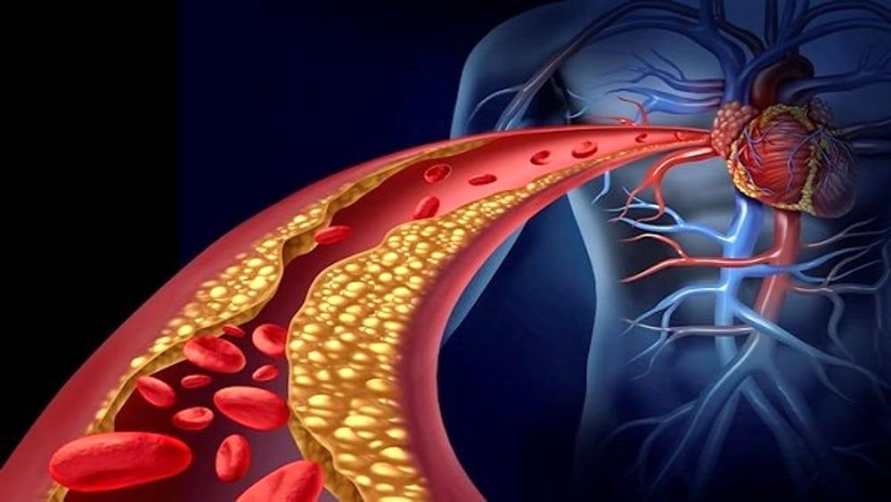 Aterosclerosi, l'importanza della prevenzione