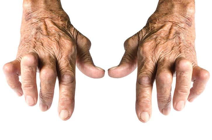 Artrite reumatoide: di cosa si tratta?