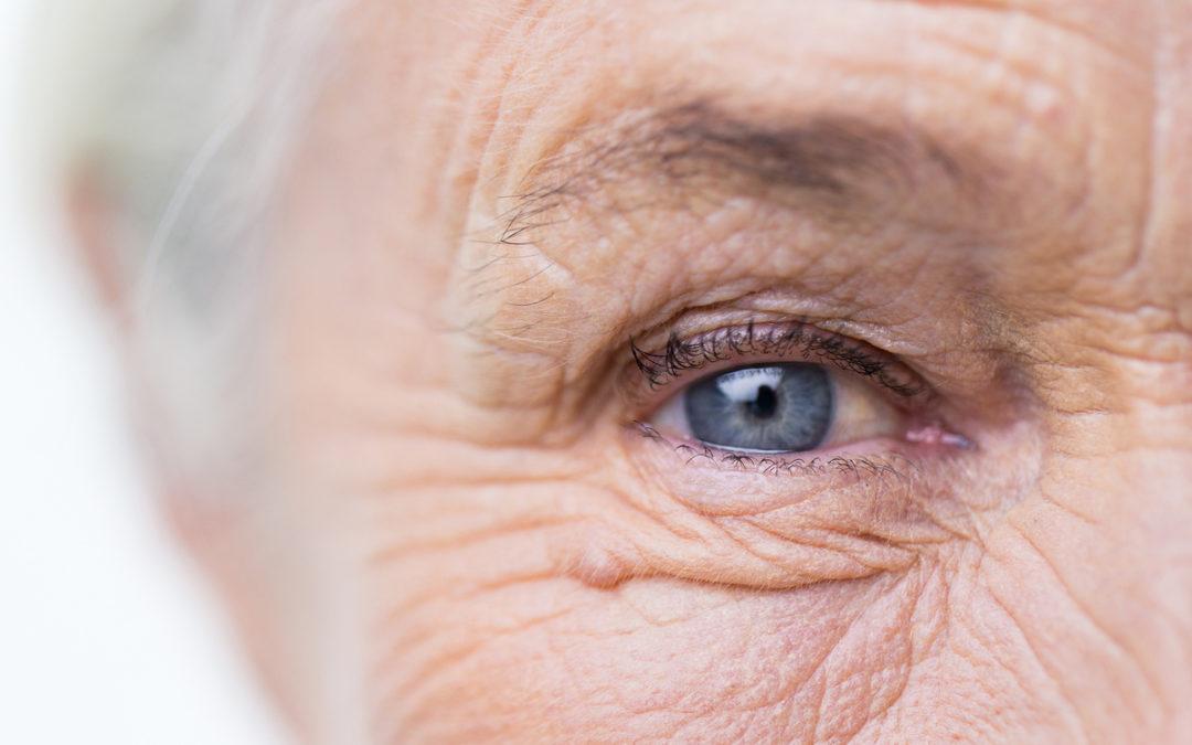 Maculopatia senile: cos'è e come riconoscerla