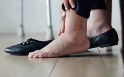 Anziani e problemi di circolazione: cause e rimedi icare iCare – Servizi a domicilio per anziani e disabili circolazione 400x250