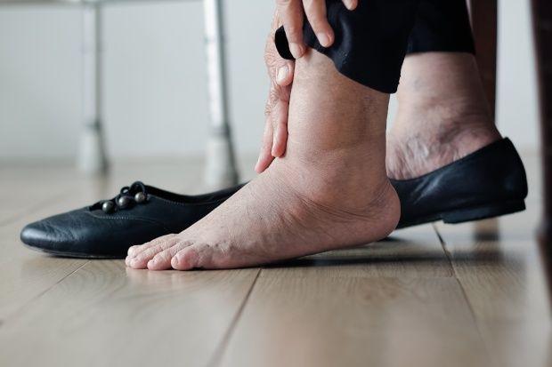 Anziani e problemi di circolazione: cause e rimedi