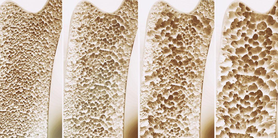 Osteoporosi: boom di fratture negli ultimi 20 anni