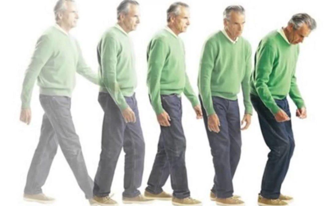 Parkinson: cos'è la bradicinesia?