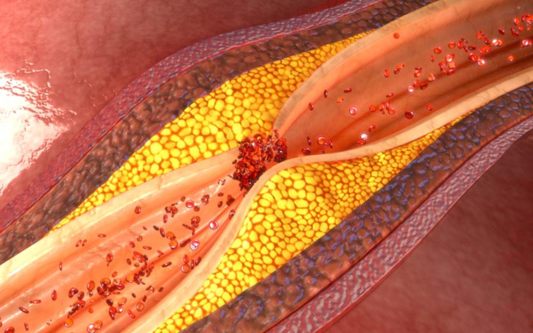 Aterosclerosi, tre consigli per prevenirla